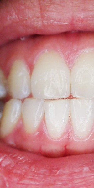 Muita gente não leva a sério, o que pode resultar na perda dos dentes e no desenvolvimento de doenças sistêmicas